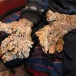 Terrible enfermedad en las manos incurable